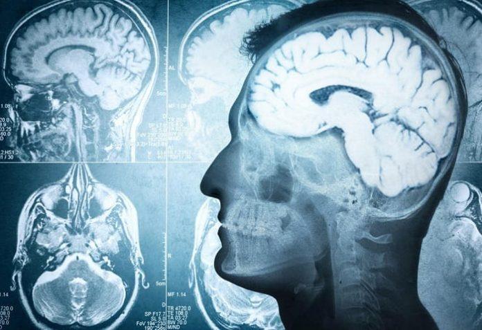 news - 10657-brain-disconnection.jpg