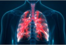 news - 11164-lungs-tease.jpg