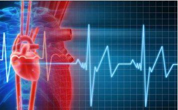 UPMC Heart Failure Progression