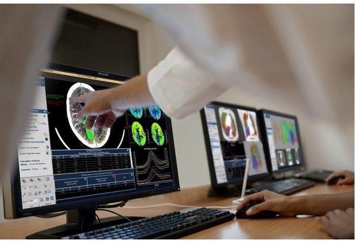 pressreleases - 11987-intellispace-advancing-care-neurology.jpg