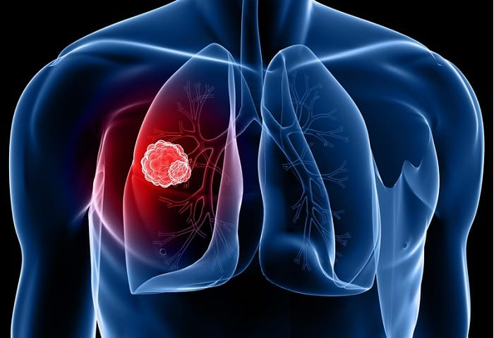 New Research System Finds & Targets Vulnerabilities in Lung