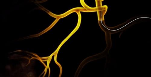 16585 - swiftninja-steerable-microcatheter-vein.jpg