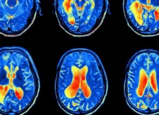 Preclinical imaging technology now driving cancer research