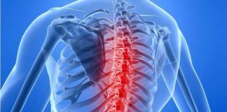 Spinal Muscular Atrophy (SMA) - An Introduction