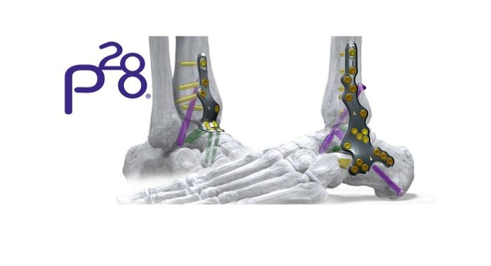 Phantom ActivCore Nail System Receives FDA Clearance - Continuous Compression Hindfoot Nail System