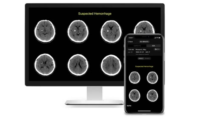 RapidAI Receives $25 M To Expand AI-Enhanced Cerebrovascular Imaging Around The World