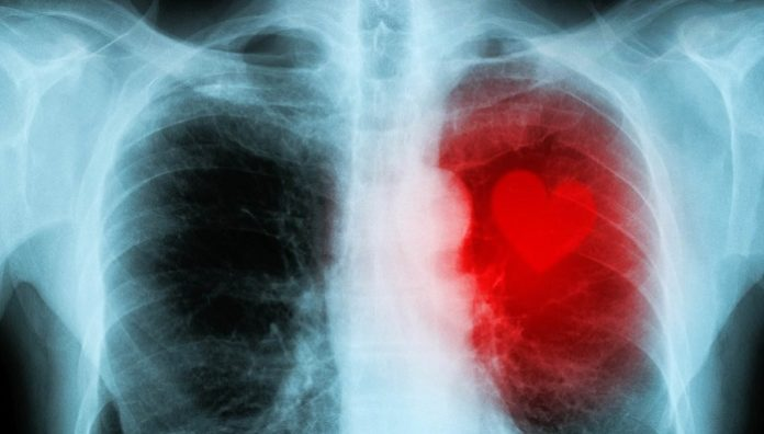 Australian and New Zealand scientists use AI to predict heart disease risk