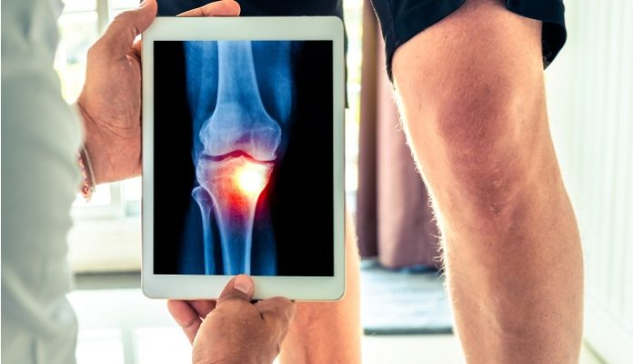 8 Signs You Should Get Knee Surgery
