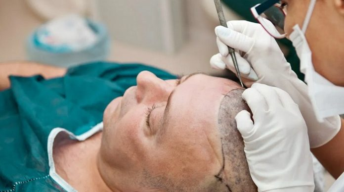 Hair Transplant For People With Curly Hair