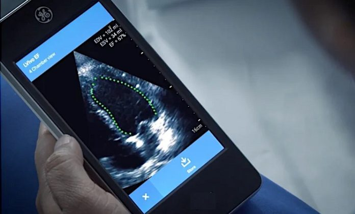 GE brings in AI-powered software to cardiac ultrasound device