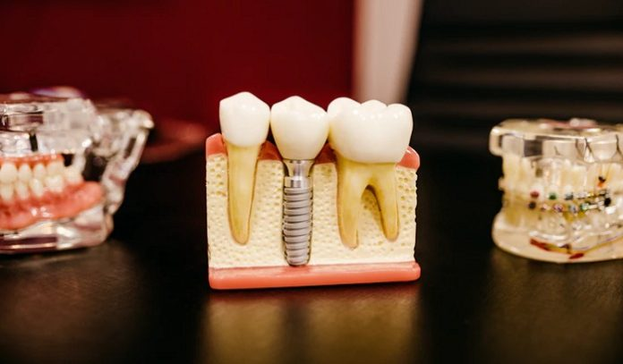 Everything You Need To Know About Root Canal