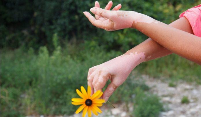 Misconceptions About Vitiligo