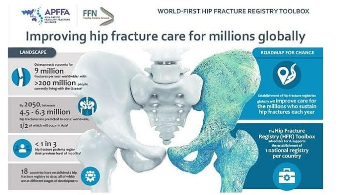 World-first Hip Fracture Registry Toolbox