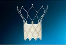 Abbott Receives FDA Approval for Minimally Invasive Portico with FlexNav TAVR System to Treat Patients with Aortic Valve Disease