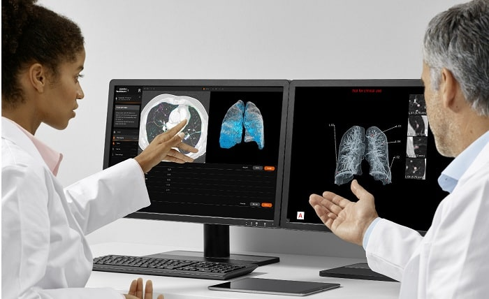 AI-based AI-Rad Companion Chest CT software from Siemens Healthineers registered for use in Europe
