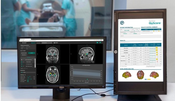 Acquisition to provide the most advanced AI platform for brain diseases