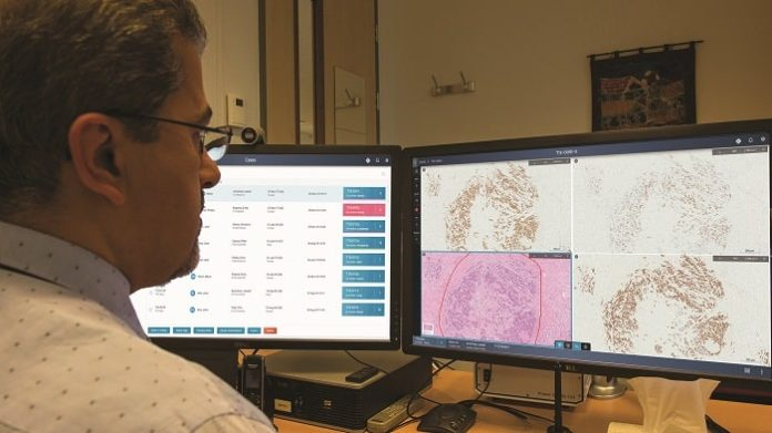 Philips boosts digital pathology with enhanced informatics to advance precision diagnosis in oncology