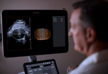 Philips integrates 3D ultrasound with innovative software for breakthrough in surveillance of abdominal aortic aneurysms