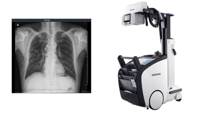 VUNO Inks Deal with Samsung Electronics to Embed AI-powered Algorithms in Samsungs Premium Mobile X-ray System