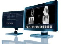 UNC Health in the US consolidates its radiology imaging with Sectra