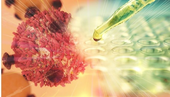 Queen's University leading clinical trial on cell therapy treatment for COVID19 patients