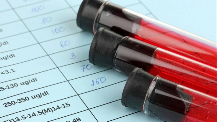 Majority of Americans taking Blood Thinners indicate the fear of major bleeding.